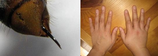毒針とスズメバチに刺されてしまった人の手の写真